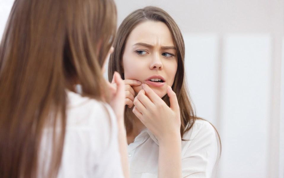 adult acne treatments