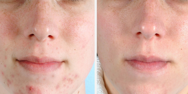 PMD Beauty MicroDerm Before After