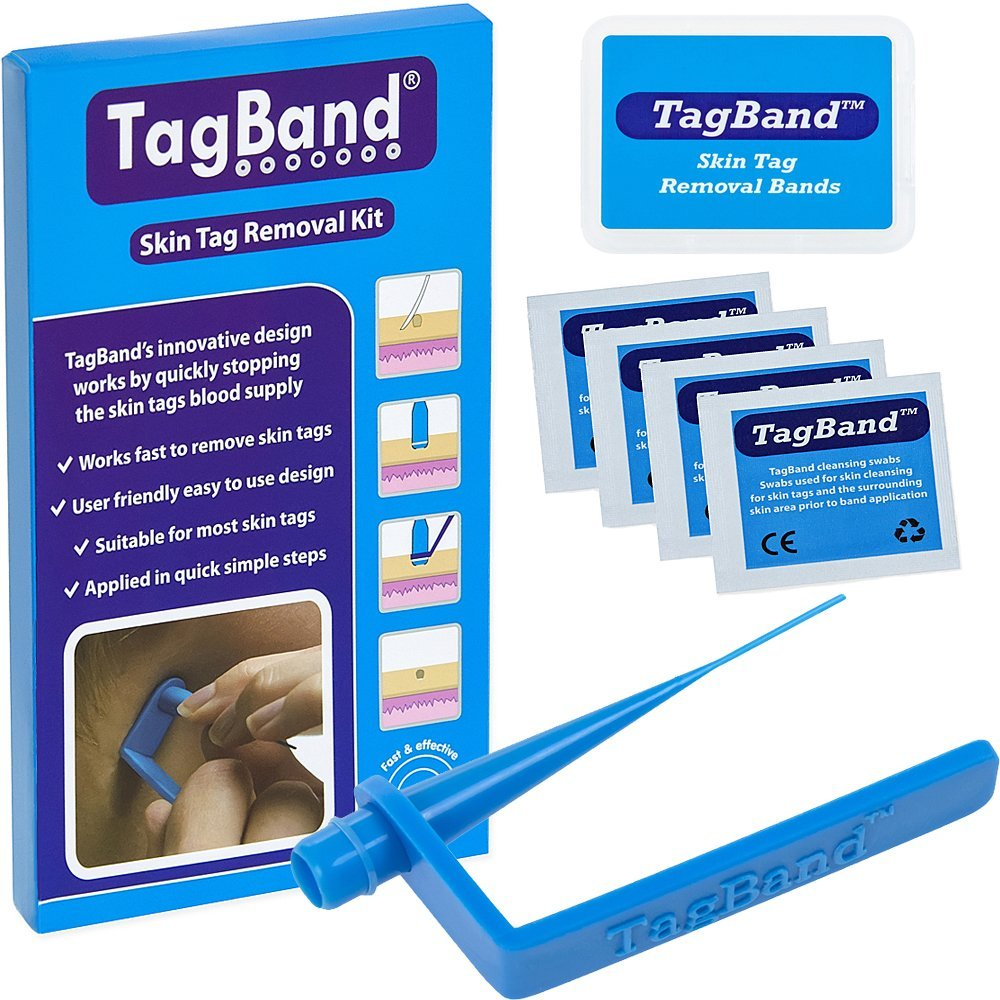 skin tags how to remove at home tagband removal kit