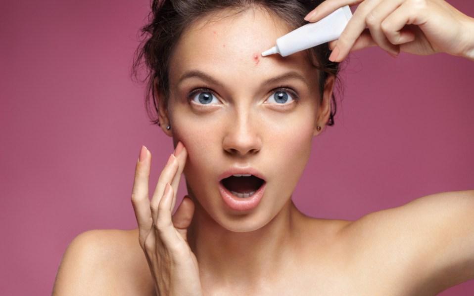 Best Ways to Treat Acne