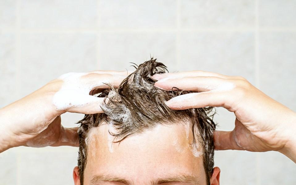 hair loss dandruff shampoo amazon