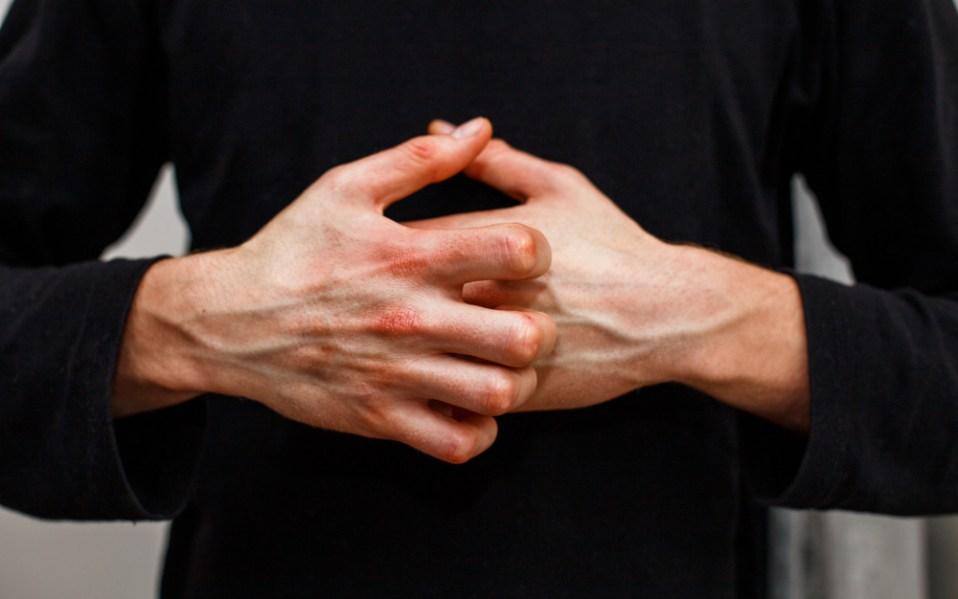 eczema skin care treatments