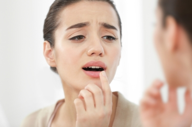 essential oils to have on hand for cold sore outbreak