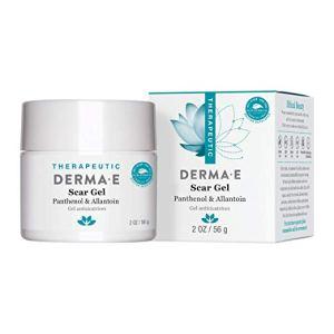 how to get rid of keloid derm-e