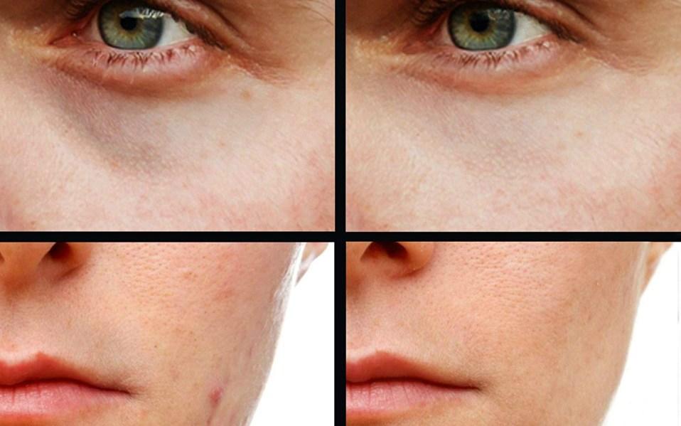 Best Concealers for Men: Makeup for