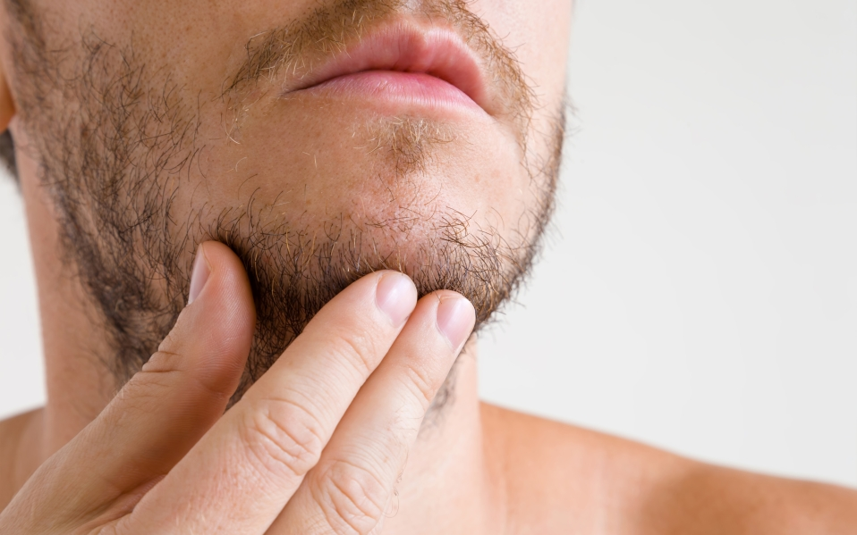 best lip balm for dry chapped